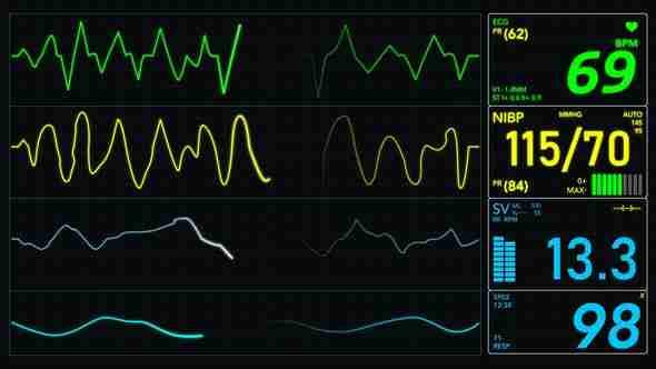 N331 EKG Nursing Sample Test
